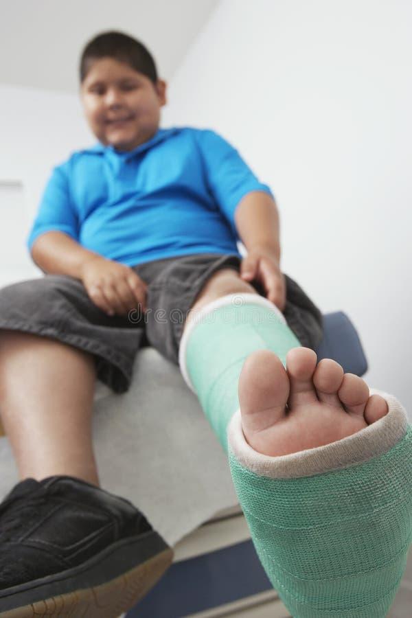 有腿的男孩在石膏模型 免版税库存照片