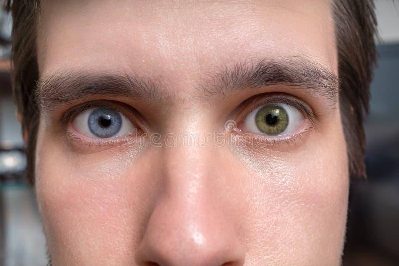 有虹膜异色症的年轻人-两只不同色的眼睛 隐形眼镜 库存照片
