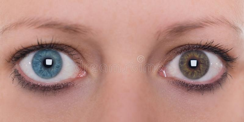 有虹膜异色症iridis,蓝色和棕色眼睛颜色的年轻女人 库存图片