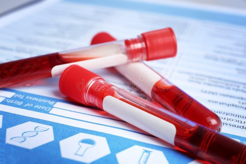 有血液的样品管在实验室试验形式,特写镜头 免版税库存图片