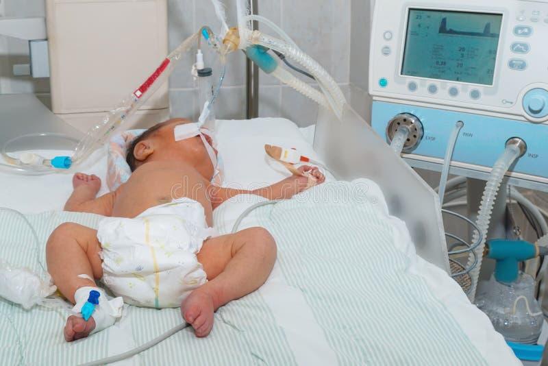 有血胆红素过多的新出生的婴孩在呼吸的机器或通风设备有脉冲血氧定量计传感器和周边静脉注射cath的 库存图片