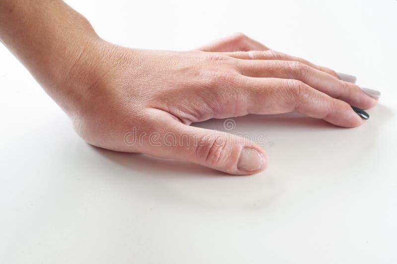 有被咬的指甲盖的女性手 库存照片