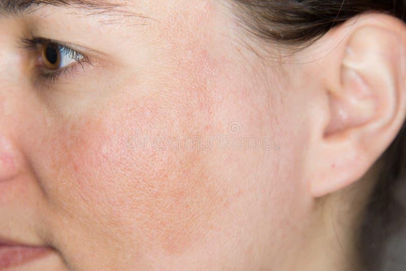 有被着色的皮肤的少妇在她的面颊 库存图片