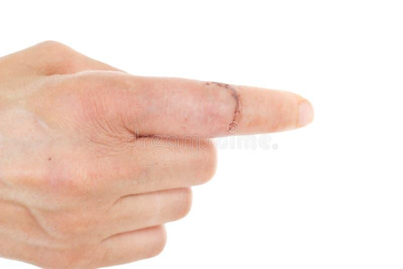 有被缝合的创伤的手指 库存照片