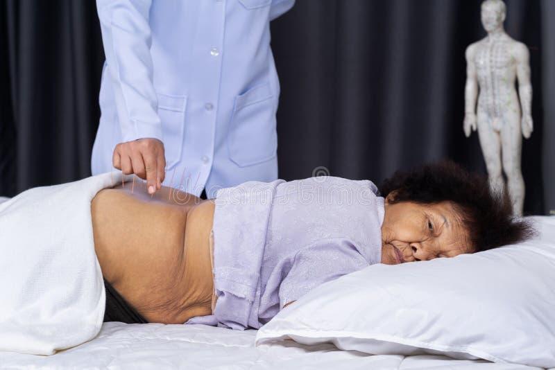 有钢针的资深女性后面在针灸疗法期间做法  免版税库存照片