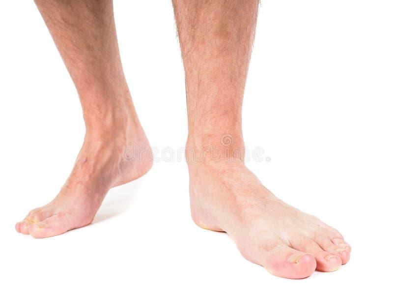 有长毛的腿的男性收养 免版税库存图片