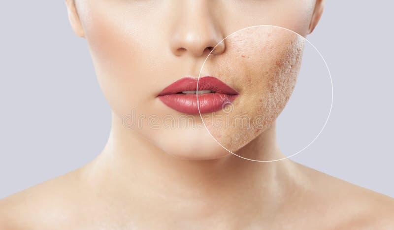 有问题皮肤的一少女 在治疗前后的照片 库存图片