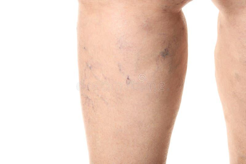 有静脉肿的妇女的腿在白色背景,特写镜头 免版税库存图片