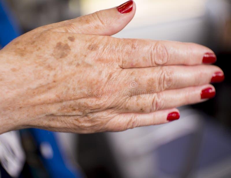 有风湿病关节炎和皮肤伤疤的妇女手 免版税库存照片