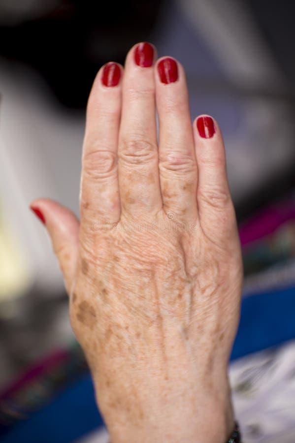 有风湿病关节炎和皮肤伤疤的妇女手 图库摄影