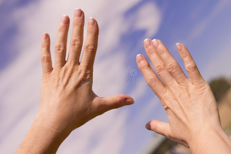有骨关节炎的妇女手 图库摄影