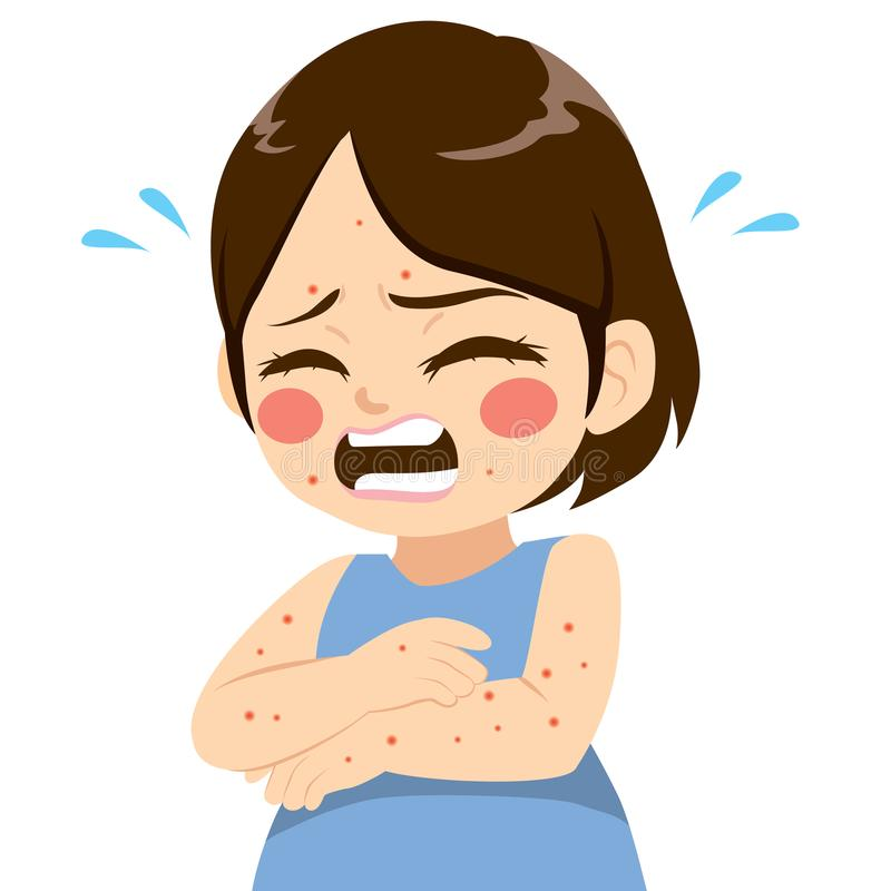 有小痒的水泡症状不适的逗人喜爱的小女孩以麻疹水痘病症