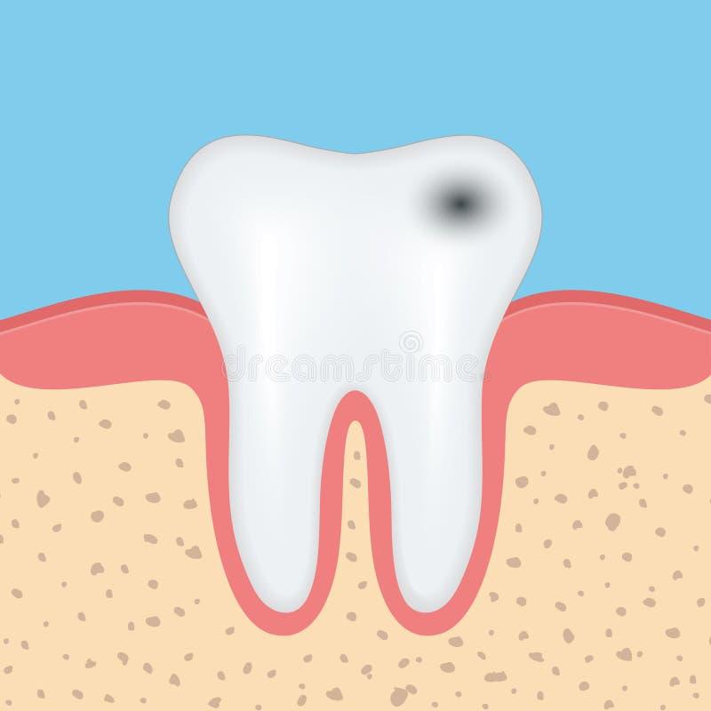有龋的人的牙 库存例证