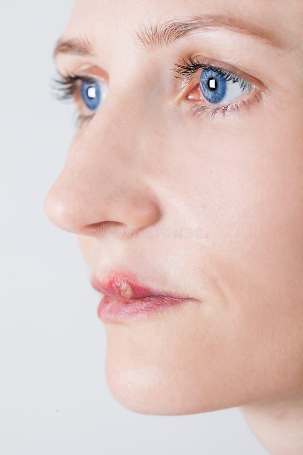 有嘴唇病毒被传染的疱疹的美丽的妇女 免版税库存图片