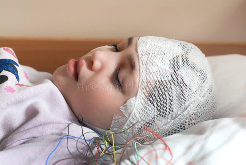 有EEG电极的女孩附有了她的头为医学化验 免版税库存图片