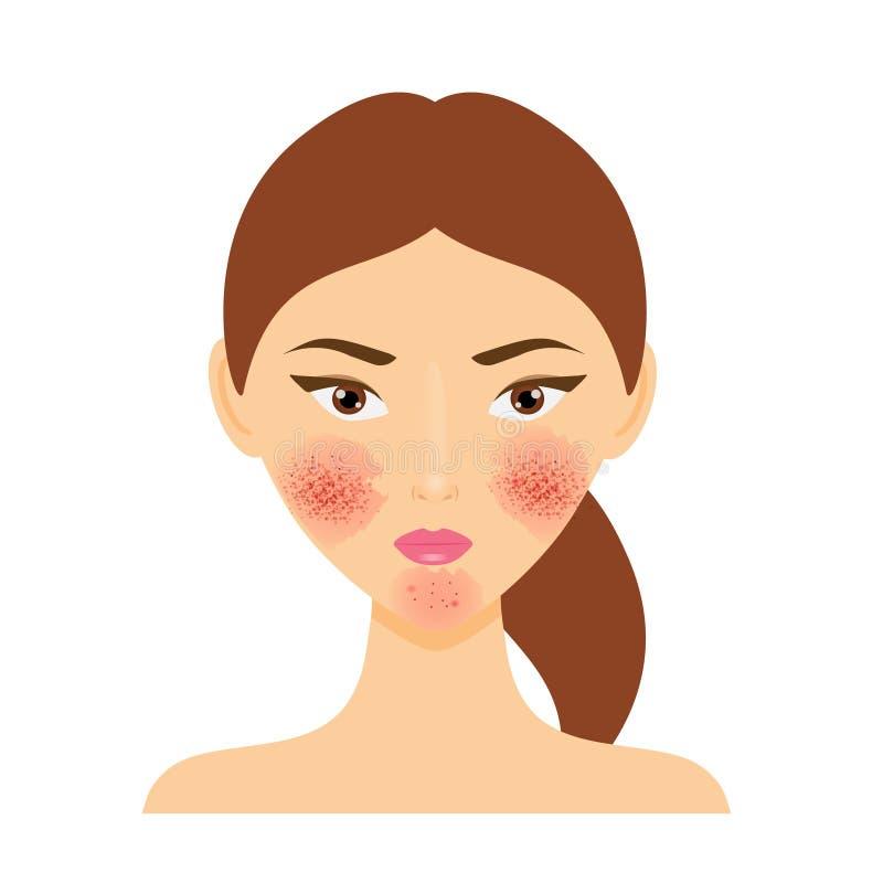 有rosacea皮肤问题的妇女 也corel凹道例证向量 库存例证
