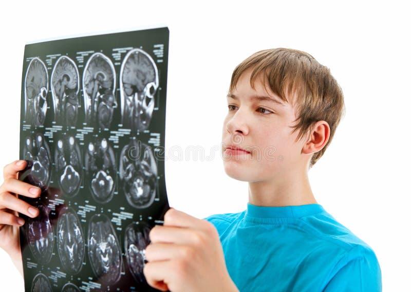 有X-射线的少年 免版税库存照片
