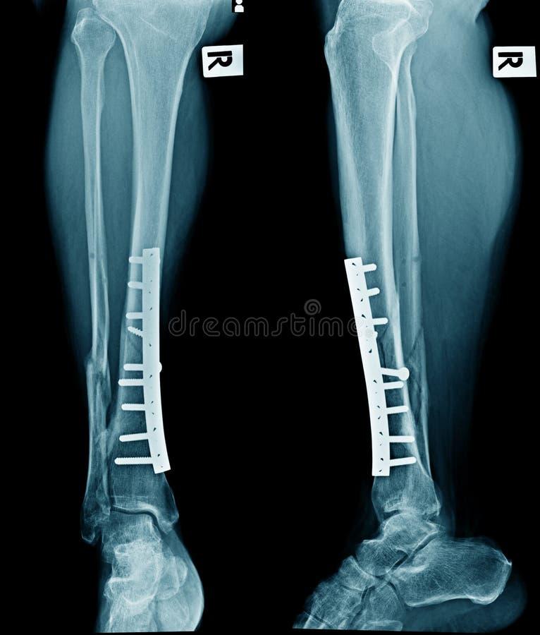 末端胫骨破裂和末端腓骨的融合 免版税库存照片