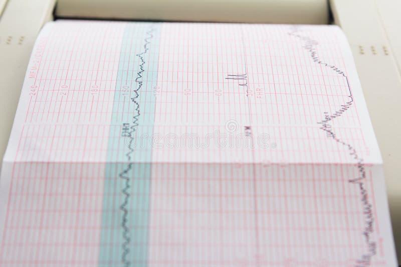 来自心动电描记器的心电图报告打印在辛苦病区里 免版税库存照片