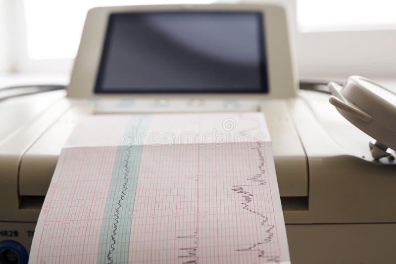 来自心动电描记器的心电图报告打印在辛苦病区里 库存图片