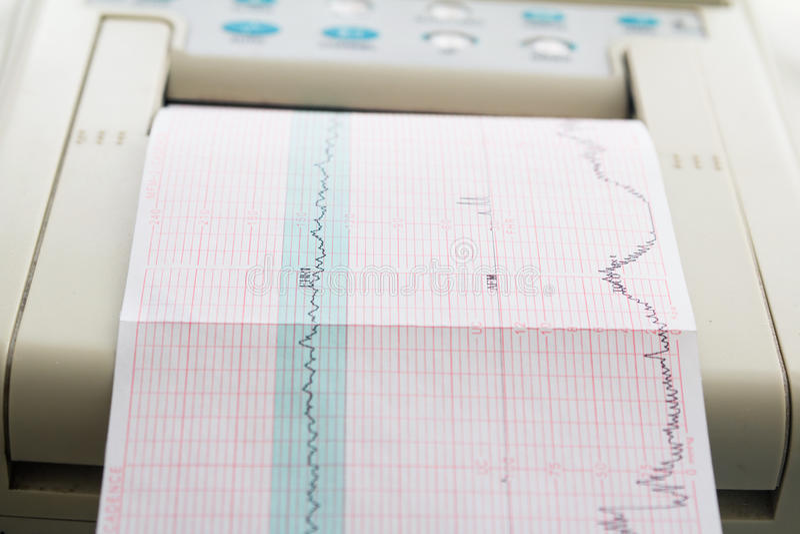 来自心动电描记器的心电图报告打印在辛苦病区里 免版税库存图片