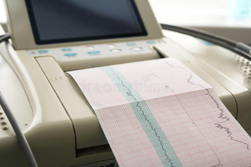 来自心动电描记器的心电图报告打印在辛苦病区里 库存照片