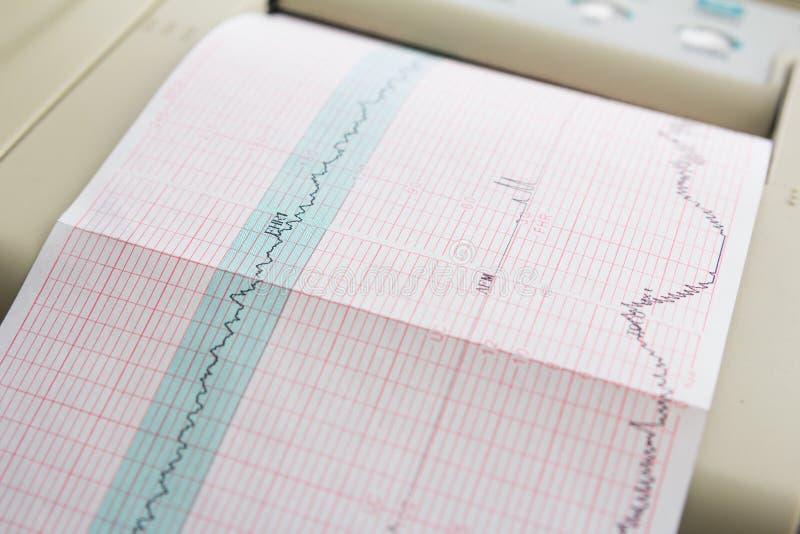 来自心动电描记器的心电图报告打印在辛苦病区里 免版税图库摄影