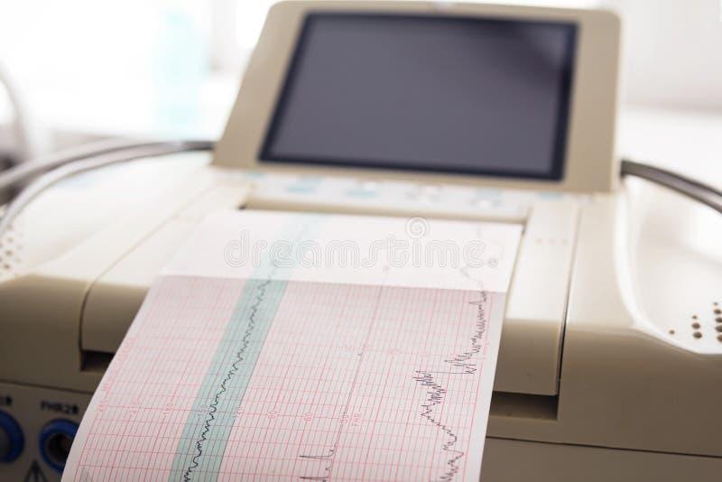 来自心动电描记器的心电图报告打印在辛苦病区里 图库摄影