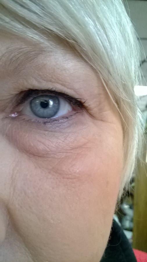 松的眼睛过敏相关皮肤 免版税库存照片