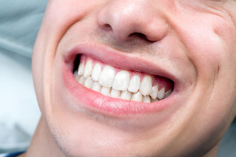 极端接近显示牙的人的男性嘴 免版税库存图片