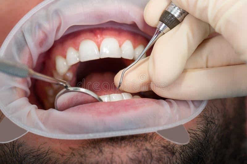 极端接近漂白牙的年轻人在牙医张显示有柴刀和口镜的人的嘴牙 免版税图库摄影