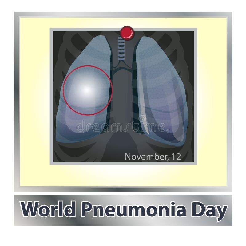 标志肺病 气喘 呼吸系统 呼吸道疾病-癌症哮喘,结核病,肺炎 世界 皇族释放例证
