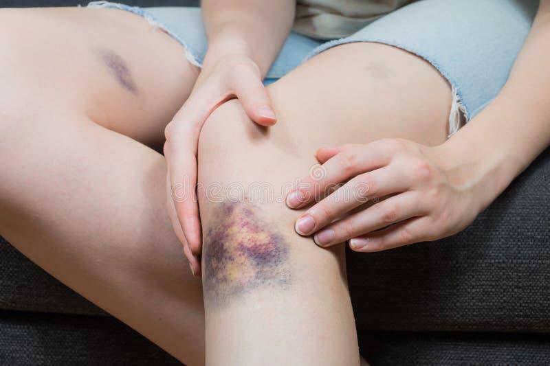 检查在少妇膝盖的挫伤伤害 免版税库存照片