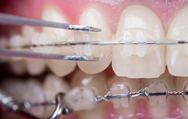 检查牙的牙医与陶瓷托架,使用反向镊子 牙宏观射击有括号的 库存图片