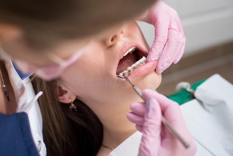 检查耐心牙的女性牙医与金属托架在牙齿诊所办公室 医学,牙科 库存照片
