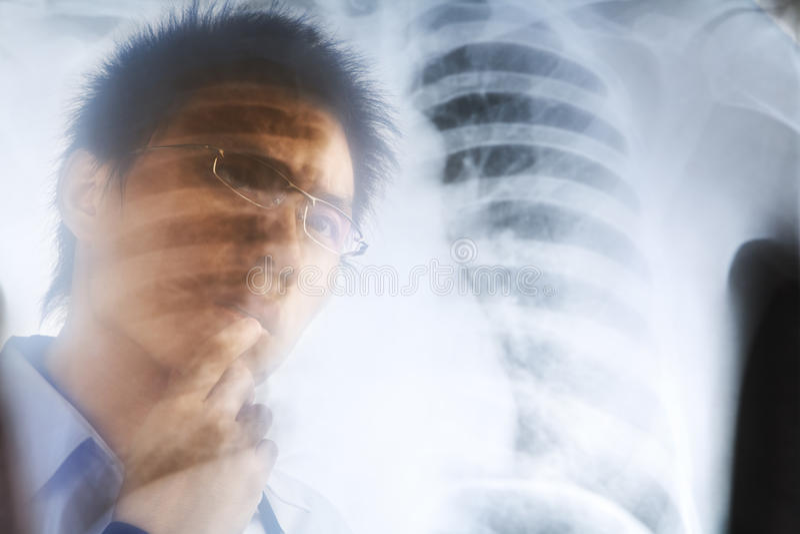 检查负X-射线的亚裔医生 免版税库存图片