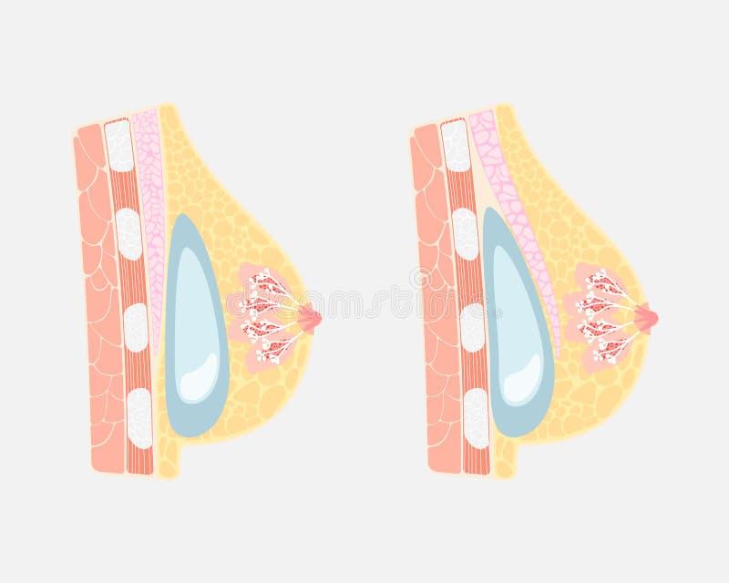 植入管安置硅树脂手术人的乳房在和在胸肌肌肉,乳房乳头,内脏解剖学下 向量例证