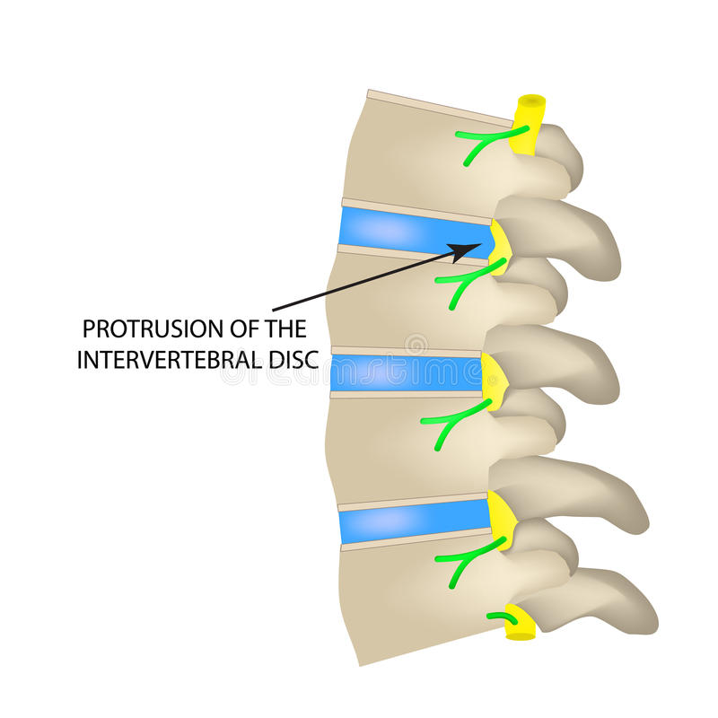 椎间盘的伸进 在被隔绝的背景的传染媒介例证 向量例证