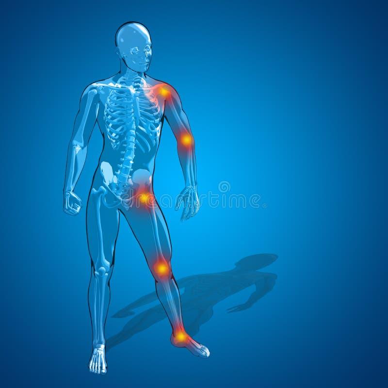 概念性3D人的人或男性最基本的痛苦或者疼痛解剖学 向量例证