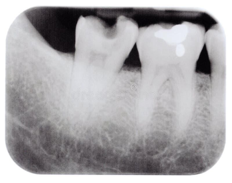 槽牙光芒x 库存照片