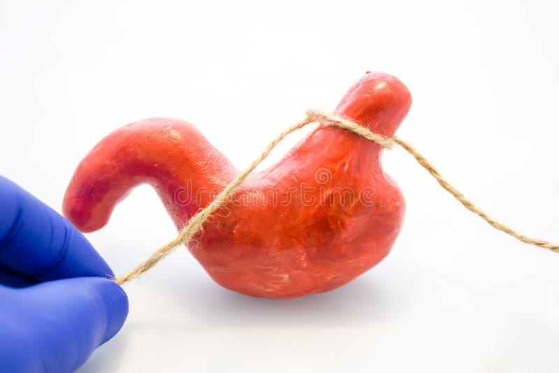 横隔膜疝气概念照片的减肥或治疗的胃或胃结合的手术 医生捏了解剖m 免版税库存图片