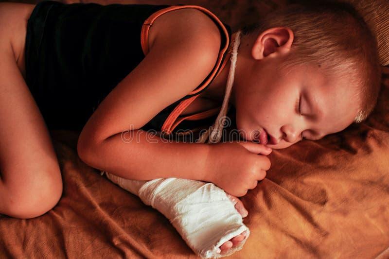 欧洲男孩在医疗过程以后睡觉 他的胳膊被包扎和在她的石膏模型 库存照片
