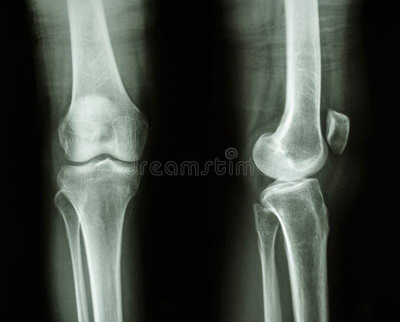 正常人的膝盖 图库摄影