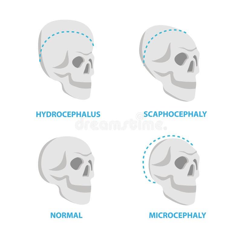 正常和被扭屈的套头骨,脑水肿, scaphocephaly,小脑症传染媒介平的象,医疗的头骨 库存例证