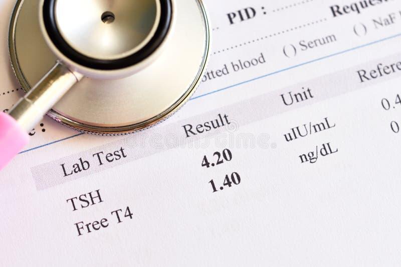 正常甲状腺激素测试结果 库存图片