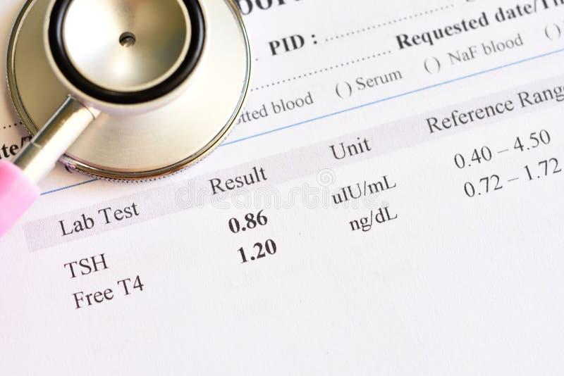 正常甲状腺激素测试结果 免版税库存照片