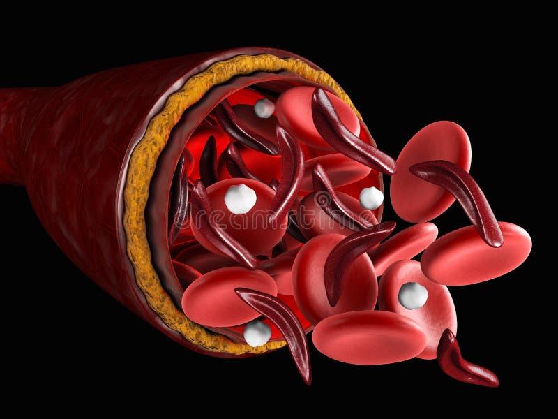 正常红血球和镰状细胞, 3d区别关于医疗的例证 皇族释放例证