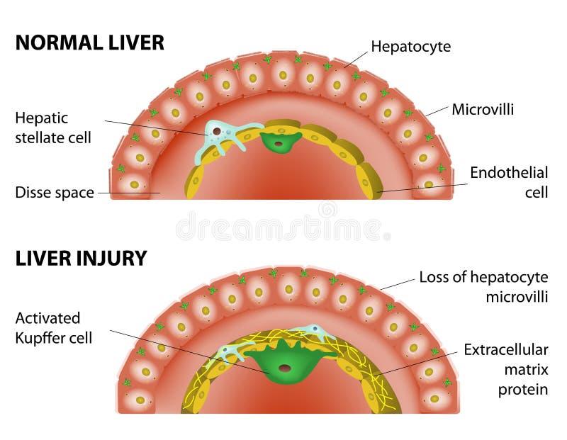 正常肝脏和肝脏损伤 库存例证