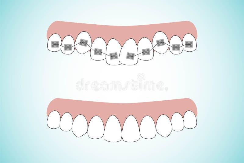 正牙学治疗括号阶段的传染媒介例证在牙的 在括号前后的牙 在舱内甲板的背景 向量例证
