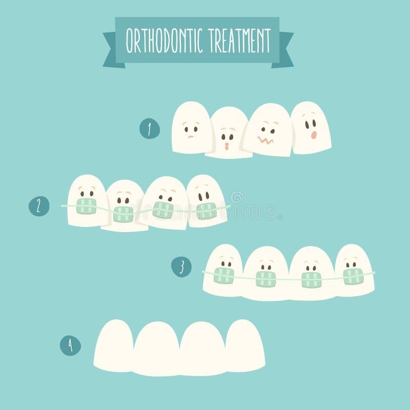 正牙学治疗(牙括号)例证 皇族释放例证
